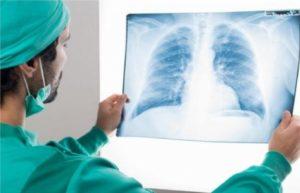 Occhio alle bufale: sia i polmoni che il cuore dei soggetti asintomatici possono subire danni. E la durata si estende ben oltre quella dell'infezione. Cosa dicono gli studi.